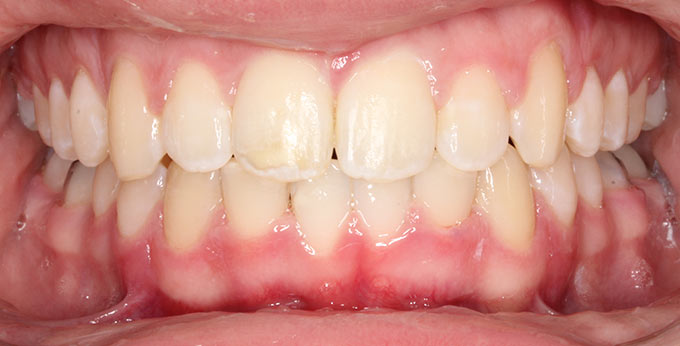 After treatment for severely retrusive lower jaw using a twin Block removable appliance
